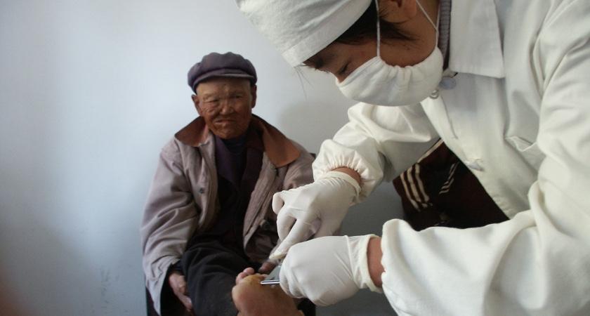 Al dertig jaar het leven delen met Chinese melaatsen en aidspatiënten